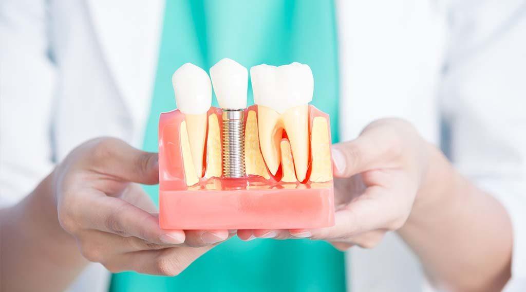 Имплантация зубов в Красносельском районе | Имплантация зубов в СПб | Имплантация в СПб | Установка зубных имплантов в СПб | Установка зубных имплантов в Красносельском районе
