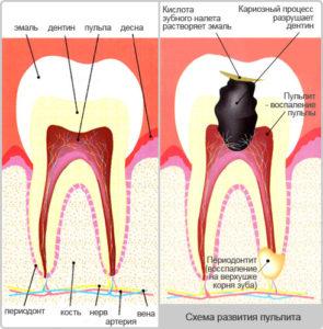 Лечение пульпита в СПБ | Лечение пульпита зубов в СПб | Лечение пульпита в Красносельском районе | Лечение пульпита на Петергофском шоссе