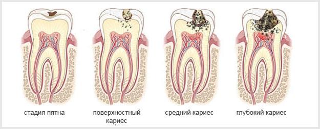 Лечение кариеса в СПб | Лечение кариеса зубов в СПБ | Лечение кариеса в Красносельском районе | Лечение кариеса зубов в Красносельском районе