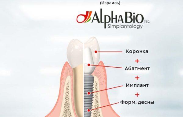 Имплантация AlphaBio под ключ
